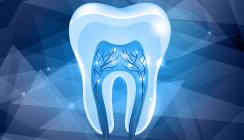 Mit Füllungen Zähne heilen