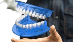Studie: Zahnärzte verpassen Patienten in Städten öfter Kronen