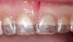 Full Mouth Rehab auf Lithiumdisilikat-Glaskeramikbasis