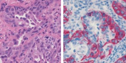 Pathologie und histopathologische Prognosefaktoren oraler Karzinome