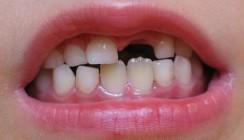 Therapie beim Zahnunfall – was ist zu tun?