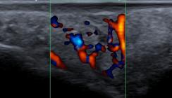 Intraorale sonografische Darstellung einer Tumor-Neubildung am Hartgaumen