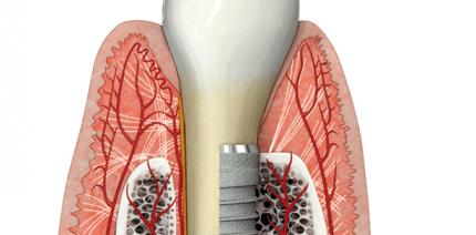 Gingiva-Biotyp: Einfluss auf chirurgisch-restaurative Implantattherapie