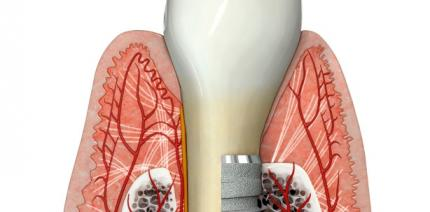 Einfluss des gingivalen Biotyps auf die restaurative Implantattherapie