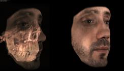 Gesichtsscanner unterstützen Behandlungsplanung