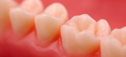Aktuelle Konzepte zur Prävention von Gingivitis und Parodontitis