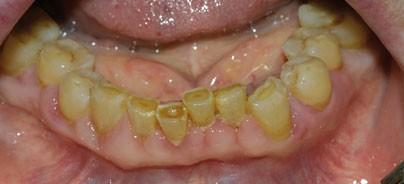 Gingivahyperplasie als Nebenwirkung des Kalziumkanalblockers Amlodipin