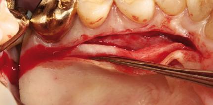 Gingivatransplantate im Frontzahnbereich