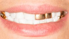 Statussymbol: Weiß ist das neue Gold