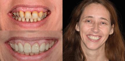 Korrektur eines Gummy Smile in Verbindung mit einer ästhetischen Gesamtrehabilitation