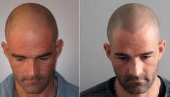 Haar-Tattoo gibt Männern Selbstvertrauen zurück