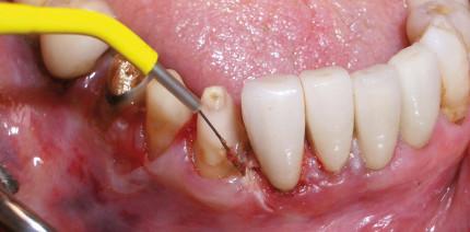 Kompakt und effizient für die Weichgewebechirurgie