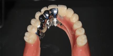 Teleskopierende Hybridprothese auf längenreduzierten Implantaten