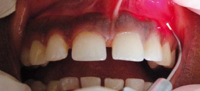 Zahnfleischhyperpigmentierung mittels Diodenlaser behandeln