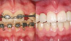 Hypodontie: Kieferorthopädische und implantologische Behandlung