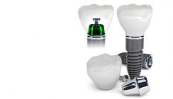 IDS 2013 zeigt aktuelle Trends bei Implantaten und Abutments