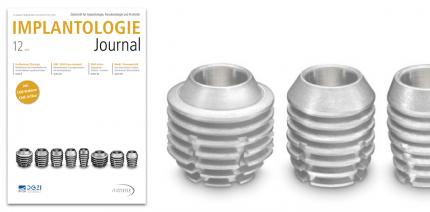 Digitale Implantologie im Fokus des Implantologie Journals