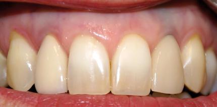 Sofortversorgung von Zahn 22 nach Extraktion