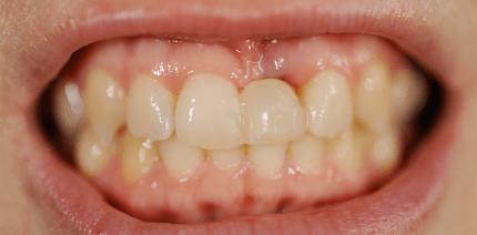 Sofortimplantation mit einteiligen Implantaten