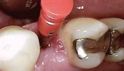 Der Einsatz von Implantaten bei schwierigen Indikationen