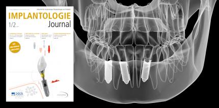20 Jahre Implantologie Journal: Jubiläumsausgabe ist online