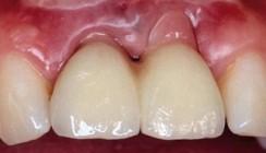 Bewertung von Implantatversorgungen
