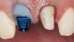 Rundum-Implantatversorgung an einem Tag