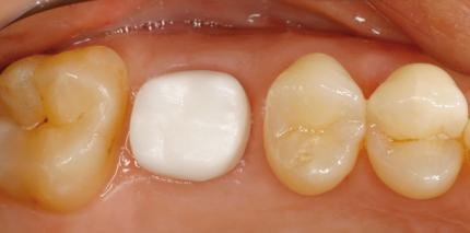 Implantation im Seitenzahnbereich – ästhetisch und minimalinvasiv