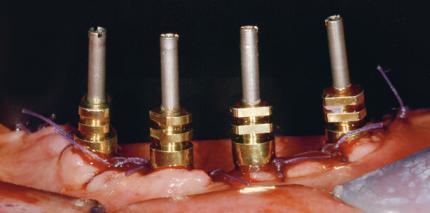 Transgingivale Implantate im zahnlosen Unterkiefer