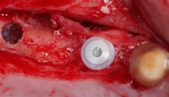 Orale Ultraschallchirurgie