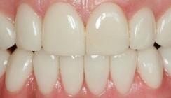 Therapien in der kosmetisch-ästhetischen Zahnheilkunde nach dem Kaiserswerther Konzept