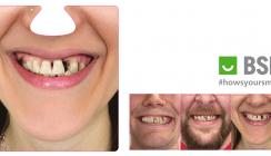 Mit Horrorvideos zu mehr Aufmerksamkeit für parodontale Gesundheit