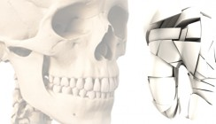 Karies schädigte schon vor 15.000 Jahren Zähne