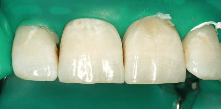 Mikroinvasivität durch Kariesinfiltration