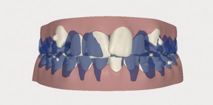 Optimierung dentofazialer Ästhetik