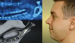Dank 3-D-Druck: Mann erhält künstliches Kieferteil