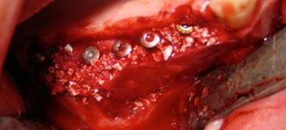 Knochenaufbau und -regeneration mit einem synthetischen Hydroxylapatit