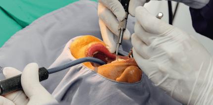 Oralchirurgische Eingriffe bei Patienten unter Antikoagulantientherapie