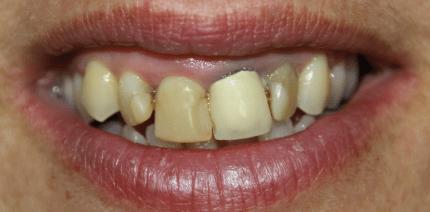 Doping für die Zähne? Die medizinische Notwendigkeit von Veneers