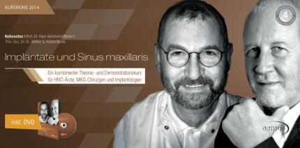 "Seminar ""Implantate und Sinus maxillaris"""