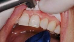 Füllungen im Zahnhalsbereich – mit dem Laser von Vorteil