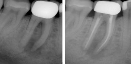 Laser – Sinnvoll für nachhaltigen Therapieerfolg in der Endodontie?
