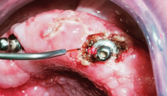 Lasertherapie von fibromatöser Prothesenstomatitis