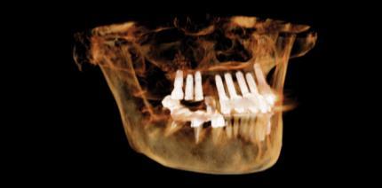 State of the Art beim 2-D-/3-D-Röntgen in der täglichen Praxis