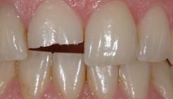 Adhäsive Therapie traumatisch geschädigter Zähne