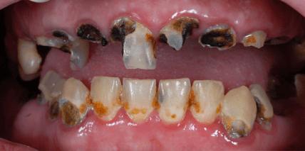Bilder mit Gruselfaktor: Zahnarztphobie und die fatalen Folgen