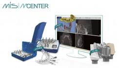 MCENTER Europe bietet Service für Implantatplanung und -prothetik