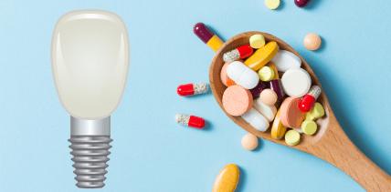 Wie Medikamente die Haltbarkeit von Zahnimplantaten beeinflussen