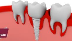 Fortbildung: Metallfreie Implantologie