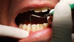 Diabetes-Medikament wirksam gegen Parodontitis
